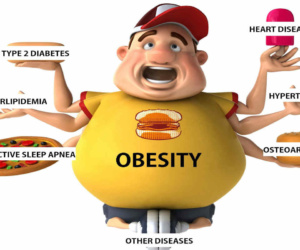 effects-of-obesity-300x250